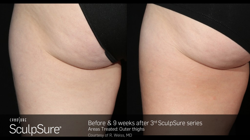 sculpsure before and after outer thigh treatment rejuvenate medical spa utah