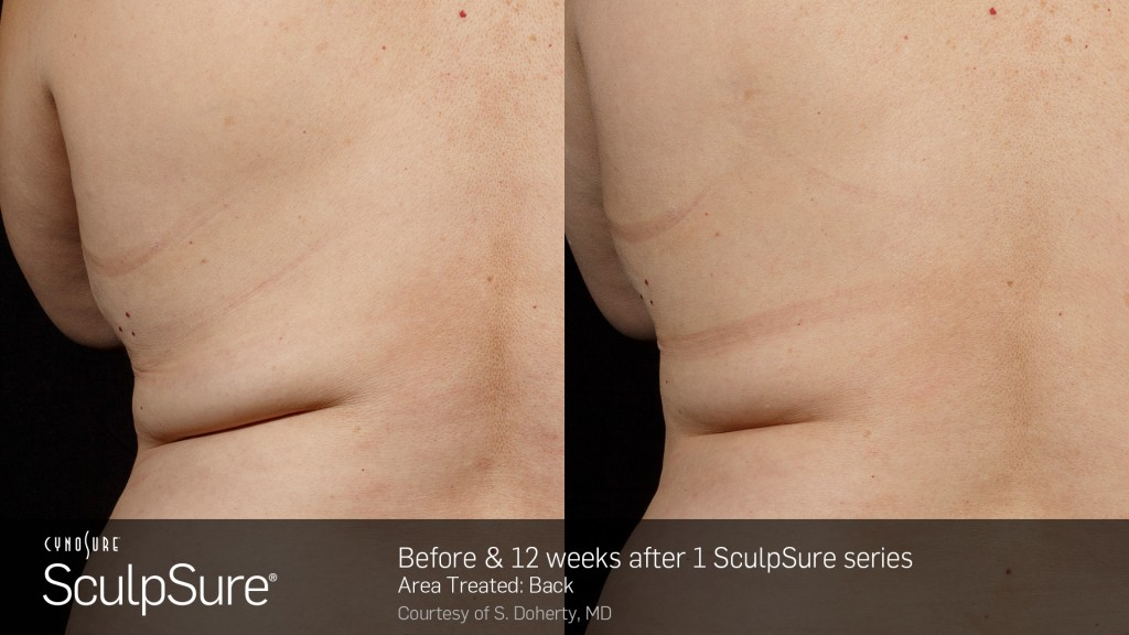 Sculpsure side by side before and after of back treatment