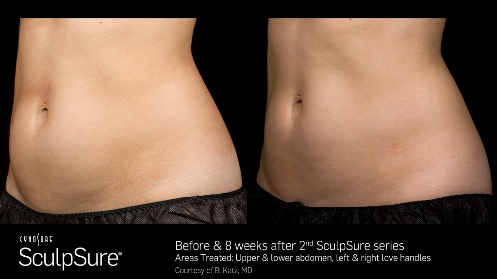 Before and After of woman side by side sculpsure laser treatment of abdomen rejuvenate utah