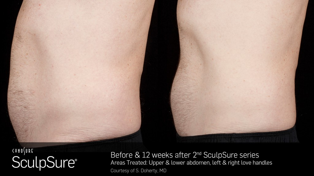 SculpSureBefore&After_SidebySide_Male9.2